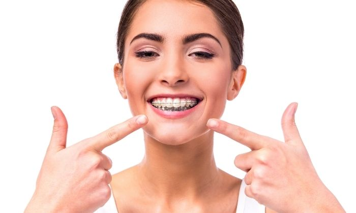 Braces vs Invisalign: Which One Is Better?